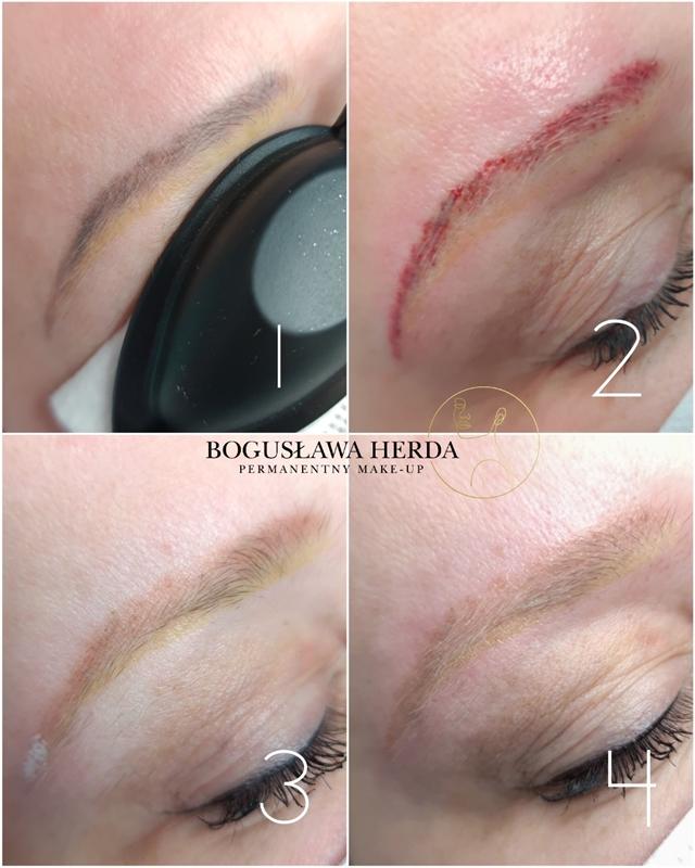 Oferta usuwanie makijażu permanentnego laser zdjęcie 1